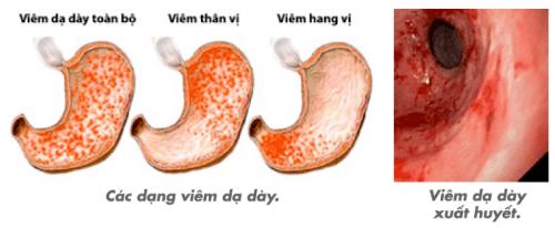 Chữa và điều trị viêm xung huyết hang vị dạ dày