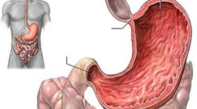 Rối loạn chức năng dạ dày do giãn dạ dày cấp