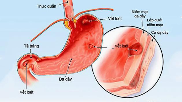 Tăng toan gây rối loạn chức năng dạ dày