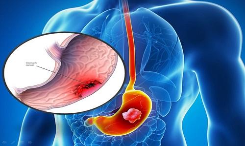 Khối u ở ung thư dạ dày phát triển lớn dần lên