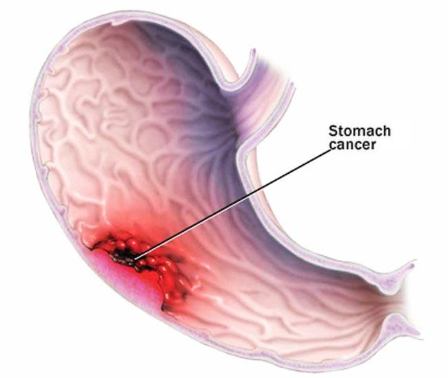 Nhận biết dấu hiệu ung thư dạ dày qua phân