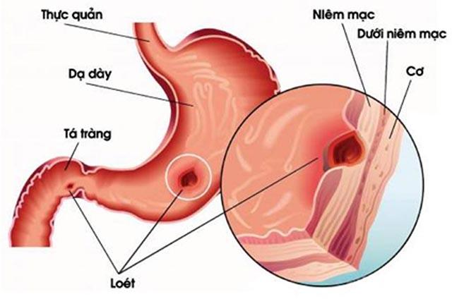 Bệnh viêm loét dạ dày mãn tính
