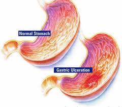 Viêm loét dạ dày với các triệu chứng và biến trứng thường gặp