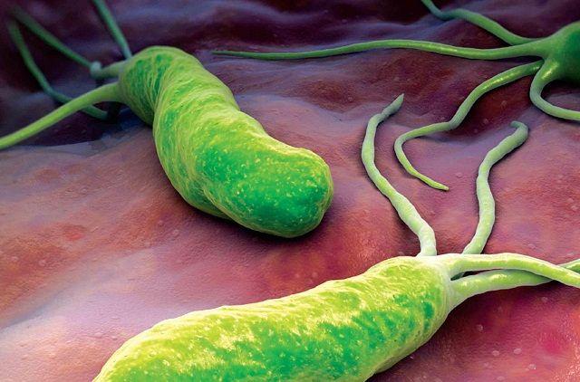 Viêm loét hành tá tràng do vi khuẩn Hp