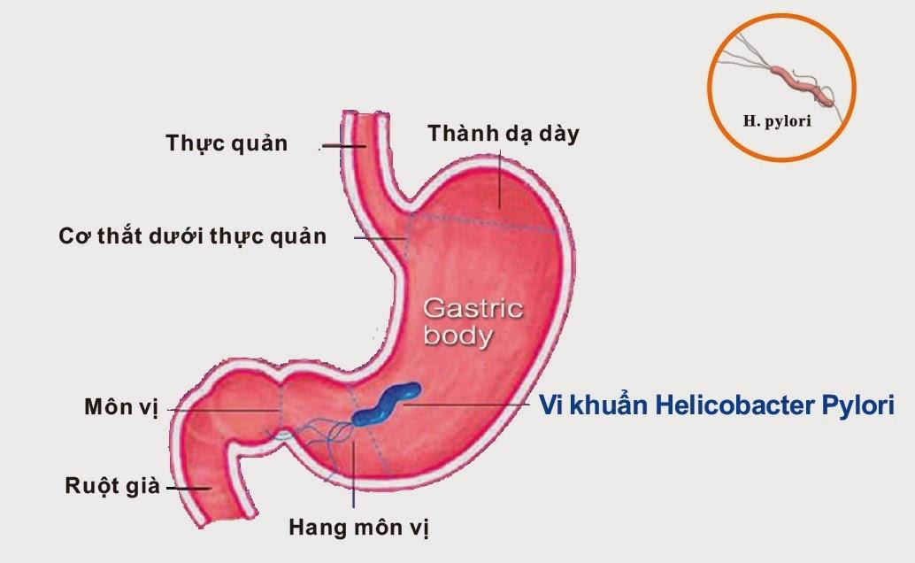 """Résultat de recherche d'images pour """"viêm dạ dày"""""""