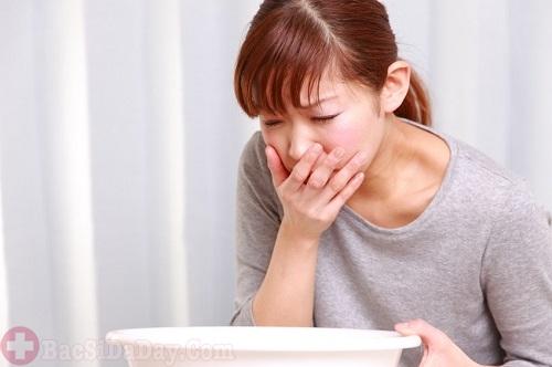 Buồn nôn và nôn coi chừng bị đau dạ dày