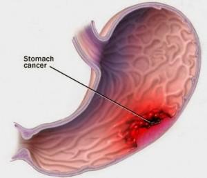Tổng hợp các bệnh về dạ dày thường gặp
