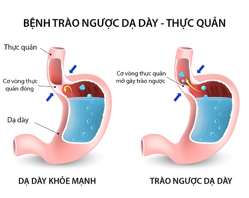 trao-nguoc-da-day-gay-ho-cho-nguoi-benh