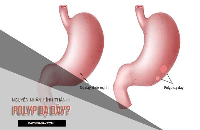 nguyên nhân gây bệnh polyp dạ dày
