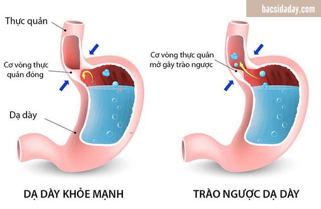 chữa trào ngược dạ dày bằng đông y