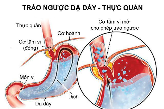 trao-nguoc-da-day-thuc-quan-do-a-la-the-nao