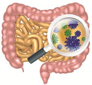Đau bụng dưới bên trái có liên quan đến việc đường ruột nhiễm trùng