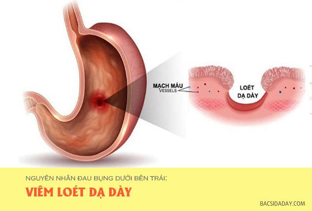 nguyên nhân đau bụng dưới bên trái