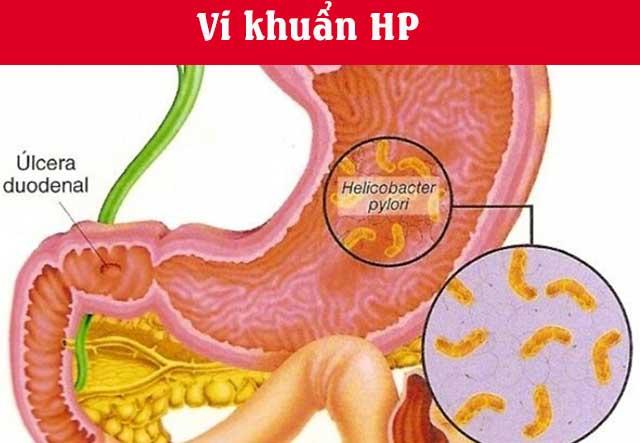 vi khuẩn HP là gì