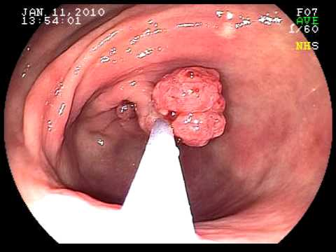 cat-polyp-da-day-benh-vn-1