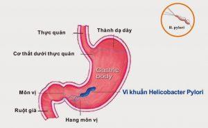 Vi khuẩn Hp dạ dày có ảnh hưởng tới thai nhi không? -1