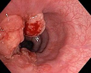 Một số hình ảnh nội soi của bệnh ung thư dạ dày -3