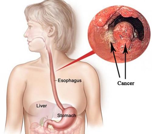 Tìm hiểu bệnh ung thư thực quản giai đoạn cuối -1