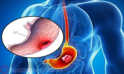 Ung thư dạ dày, ung thư thực quản gây nôn ra máu