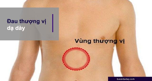 triệu chứng đau thượng vị dạ dày