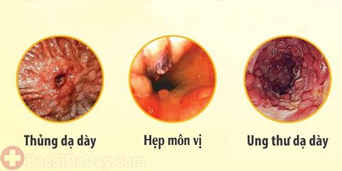 Hậu quả của bệnh viêm loét dạ dày tá tràng
