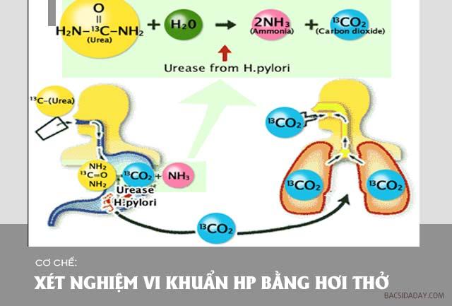 test vi khuẩn Hp bằng hơi thở