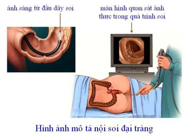 Nội soi đại tràng chẩn đoán xuất huyết dạ dày