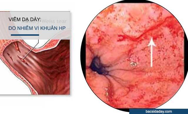 nhiễm vi khuẩn hp trong dạ dày