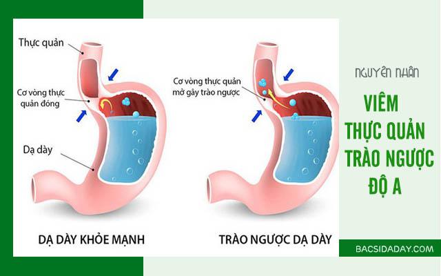 trào ngược dạ dày thực quản độ a