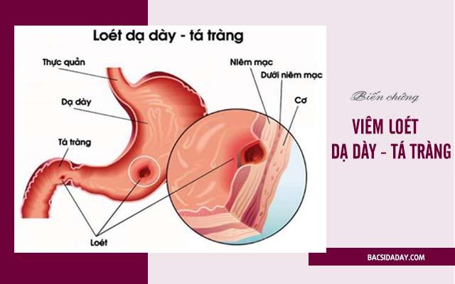 biến chứng của viêm loét dạ dày
