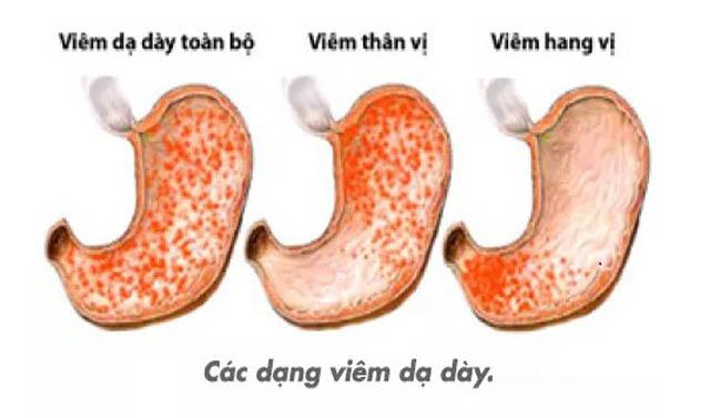 mẹo chữa viêm xung huyết hang vị dạ dày