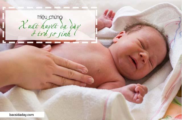 xuất huyết tiêu hóa ở trẻ sơ sinh