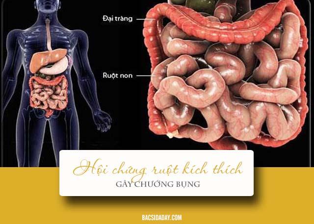 Chướng bụng là dấu hiệu của bệnh gì