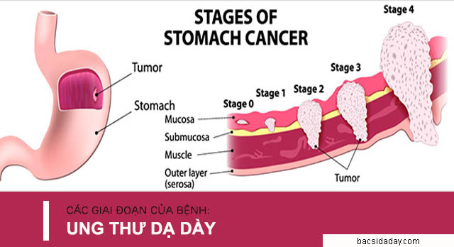 các giai đoạn phát triển của bệnh ung thư dạ dày