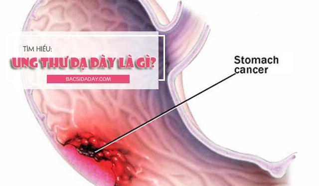 ung thư dạ dày là gì
